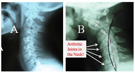 Spinal Arthritis in the Neck
